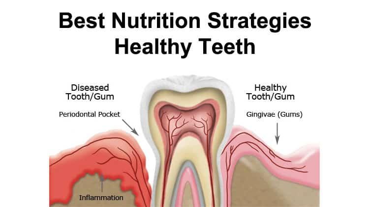 Best Nutrition Strategies For Healthy Teeth
