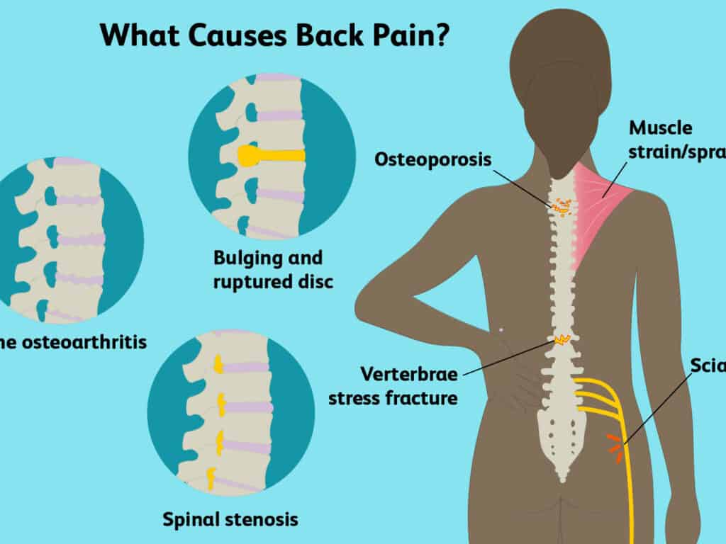 What-Causes-Back-Pain