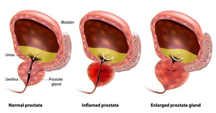 How-Prostate-Work